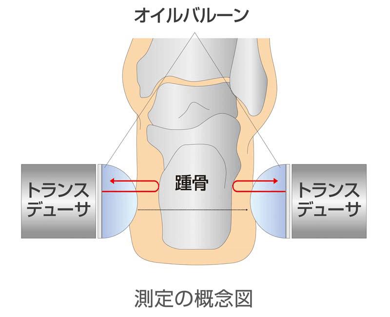 固定式トランスデューサ
