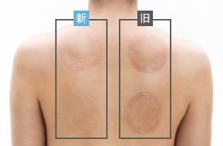 患者様にやさしい柔らかな素材、低い吸引圧の吸引導子。