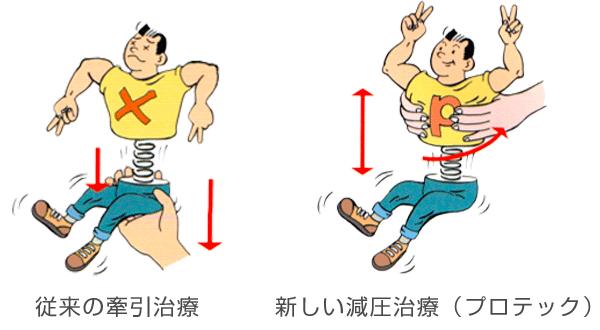 重力除去法と腰部の強制牽引療法の違い