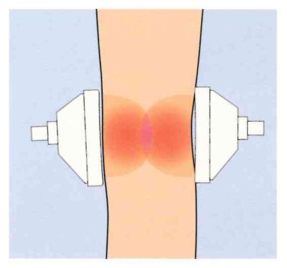 セパレート機能により、治療部位の温度調節が可能